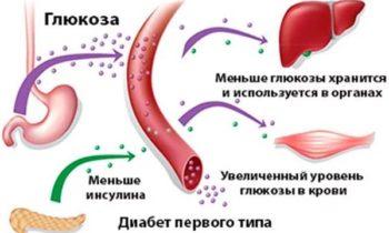 диабет первого типа