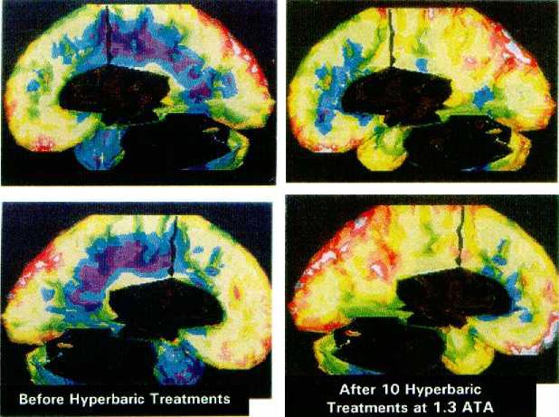 SPECT сканирование головного мозга