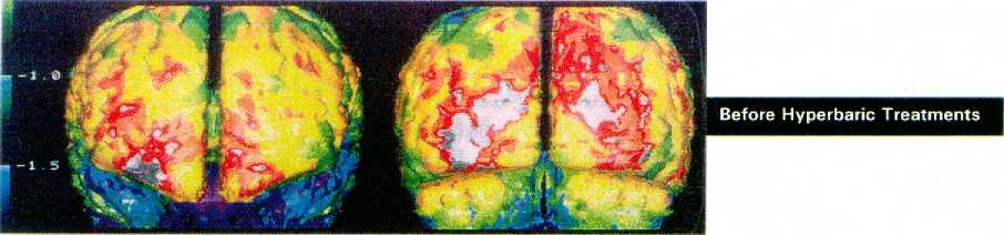 SPECT сканирование головного мозга барокамера