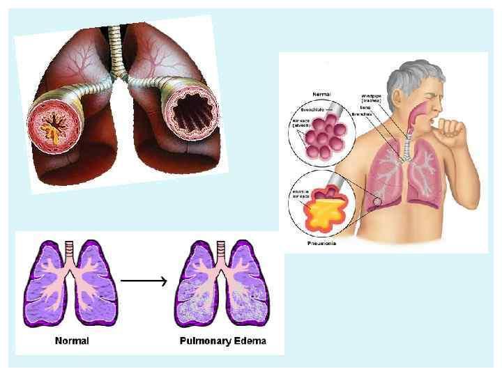 Дыхательная (респираторная, легочная) гипоксия
