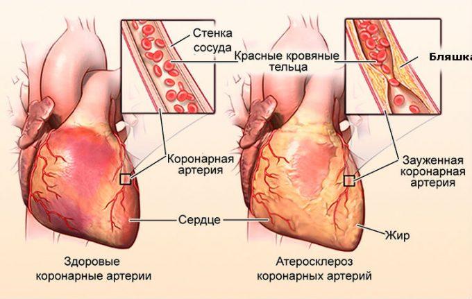 Гипоксия миокарда